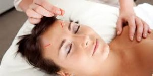 cure insomnia and anxiety with acupuncture